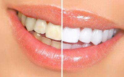 3 Tips for Extending Your Teeth Whitening Results