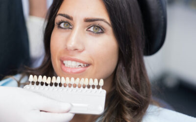 Make Your Smile Shine: How Veneers Can Improve Your Smile